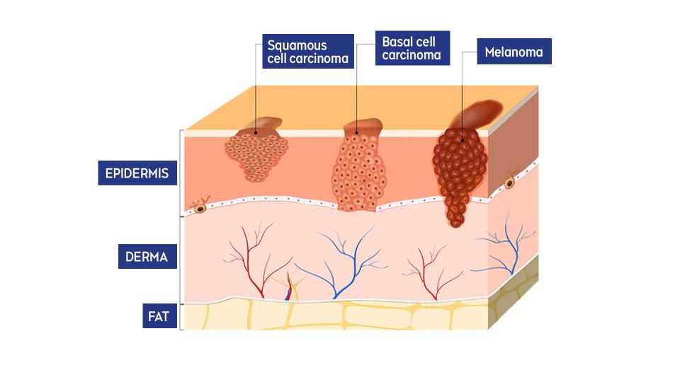 Levels of skin cancer