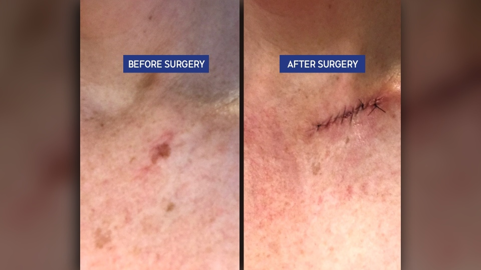 Before and after skin cancer surgery